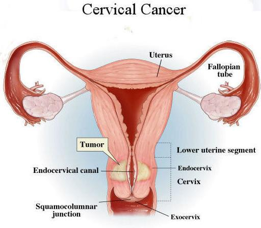 Cervical-Cancer-1