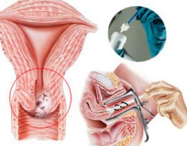 HPV Λοίμωξη