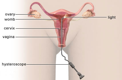 hysteroscopy-main